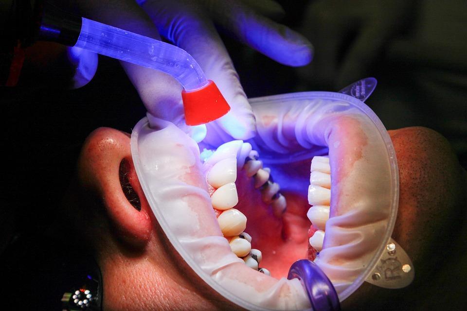 Профессиональное отбеливание зубов ультразвуком