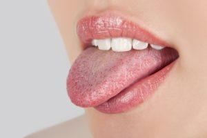 язык перед чисткой