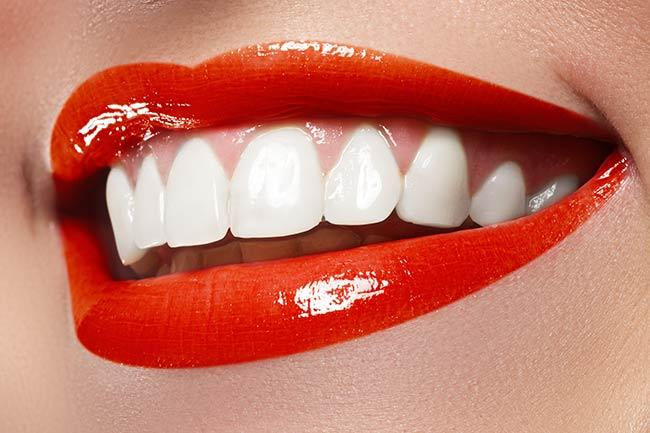 эффект чистки зубов с пломбами