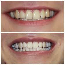 результаты отбеливания передних зубов