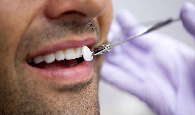 подбор цвета зубов при отбеливании